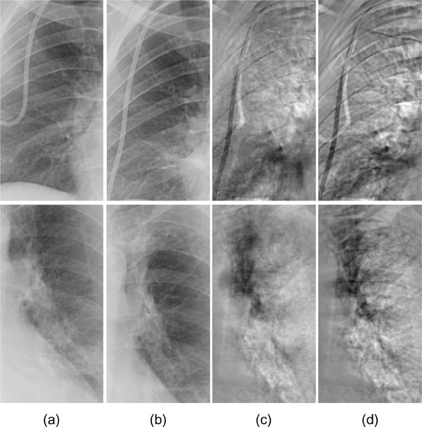 Enhanced Digital Chest Radiography: Temporal Subtraction Combined with Virtual Dual-EnergyETechnology for Improved Conspicuity of Growing Cancers and Other Pathologic Changes