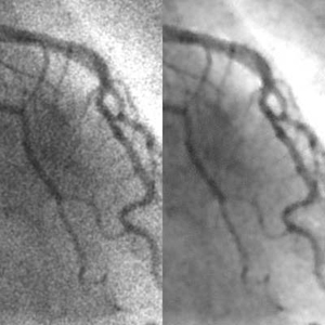 Reduction of Quantum Noise and Radiation Dose in Coronary Angiography by Means of a Neural Filter