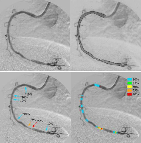Computer-Aided Diagnostic System for Detection and Estimation of Coronary Artery Stenosis by Use of a Linear-Output Artificial Neural Network