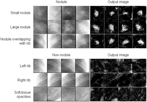 False-Positive Reduction in Computer-Aided Diagnostic Scheme for Detection of Nodules on Chest Radiographs by Means of Massive-Training Artificial Neural Network (MTANN)