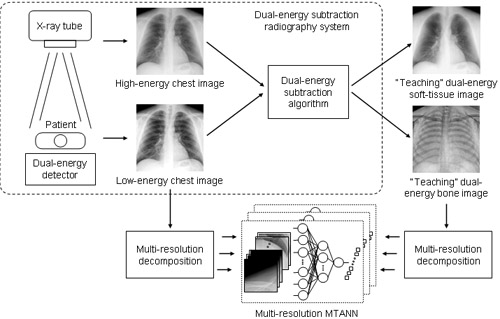 Virtual Dual-Energy Radiography: Image-Processing Technique for Suppressing Ribs in Chest Radiographs by Means of Massive-Training Artificial Neural Network (MTANN)