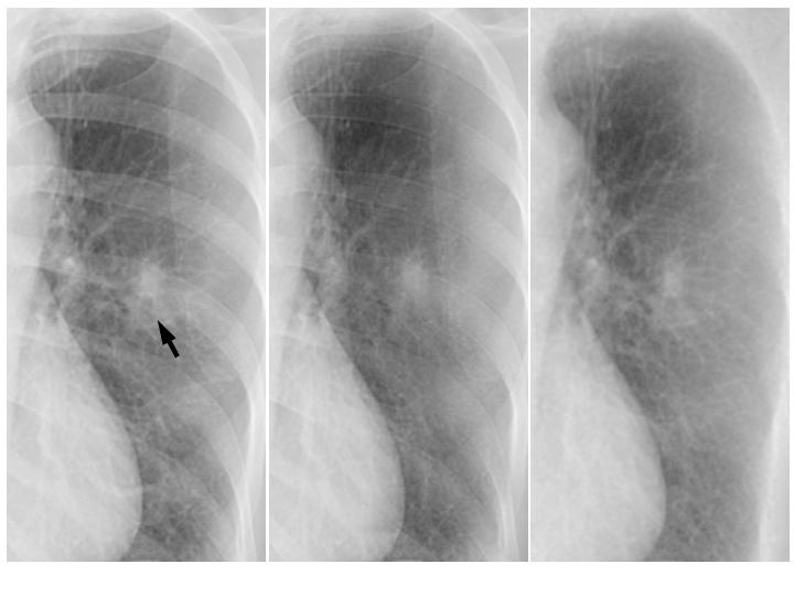 Improving the Conspicuity of Nodules in Chest Radiographs by Use of Virtual Dual-Energy Radiography