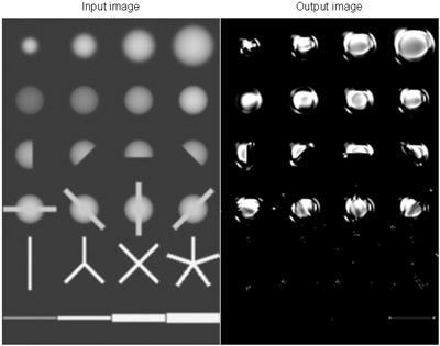 Massive-Training Artificial Neural Network (MTANN) Trained with a Small Number of Cases for Enhancement of Nodules and Suppression of Vessels in Thoracic CT: Phantom Experiments